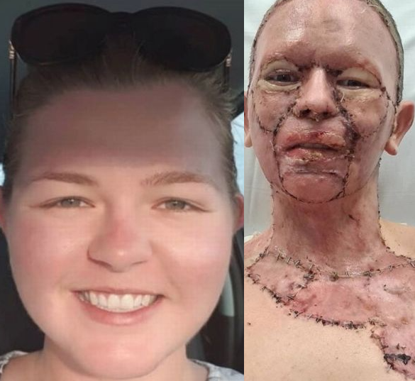 Wife Whose Face Gruesomely Burnt Authorized Her Husband To Leave Her, Conquest Online Magazine