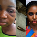 A woman miraculously survived despite having a bullet in her head for 5 days, Conquest Online Magazine