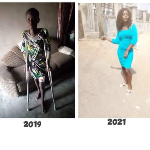 A young Nigerian lady, Keziah Makama has shared her experience during six months of battling with a liver problem, Conquest Online Magazine